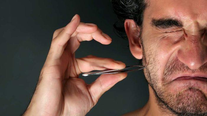Lesson 1: Ingrowing Hairs