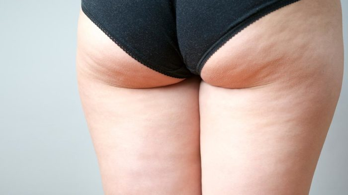 Top Cellulite Busting Tips and Products