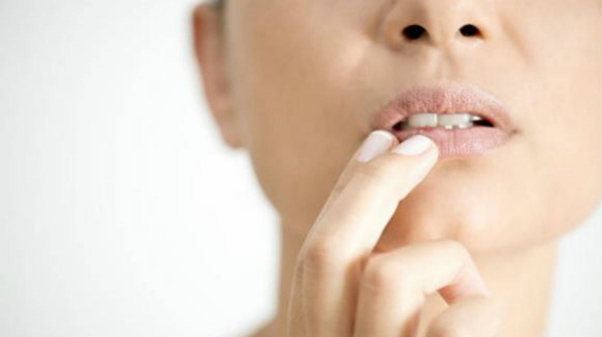 How to Prevent and Minimize Lines Around the Mouth