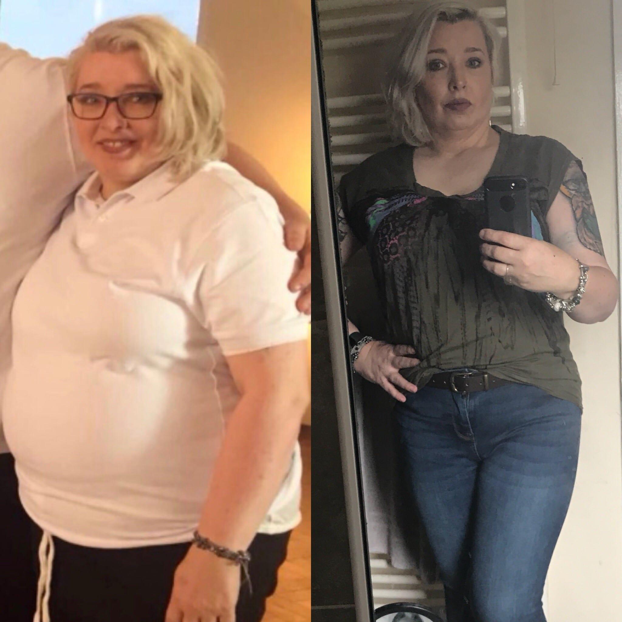 Vorher/Nacher Bild Tracey Diabetes Typ 2 Rückkehrung mit Exante