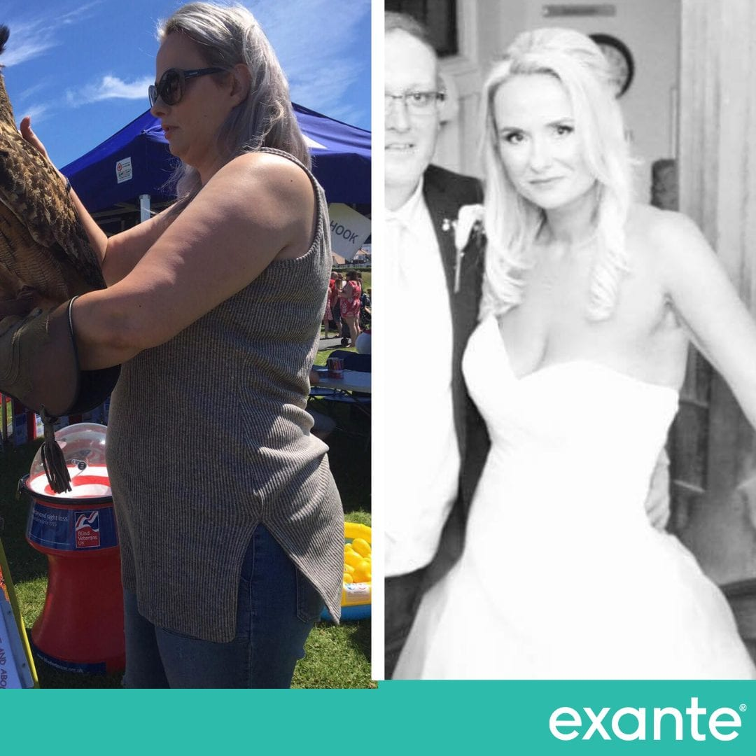 Katherine, Exante Wedding Success Story transformation