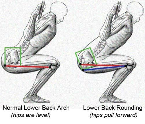 lower back rounding
