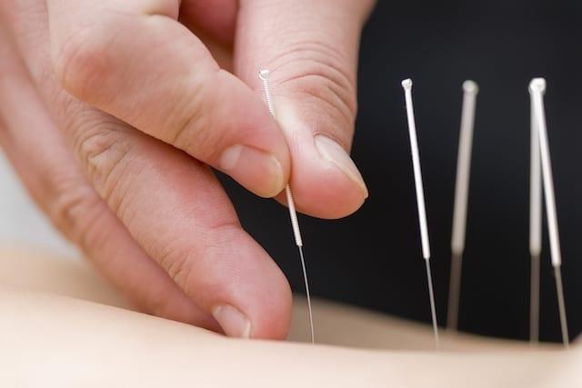 acupuntura para emagrecer
