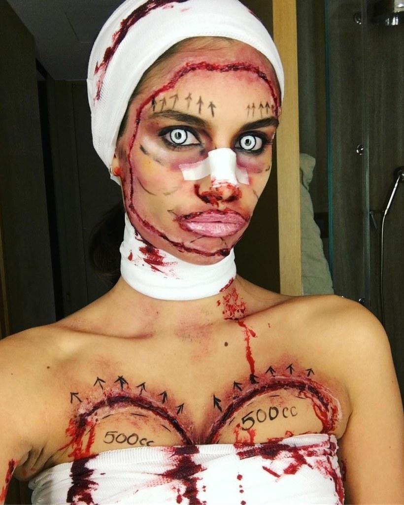 Sara Sampaio Halloween Costume 2017 botched plastic surgery