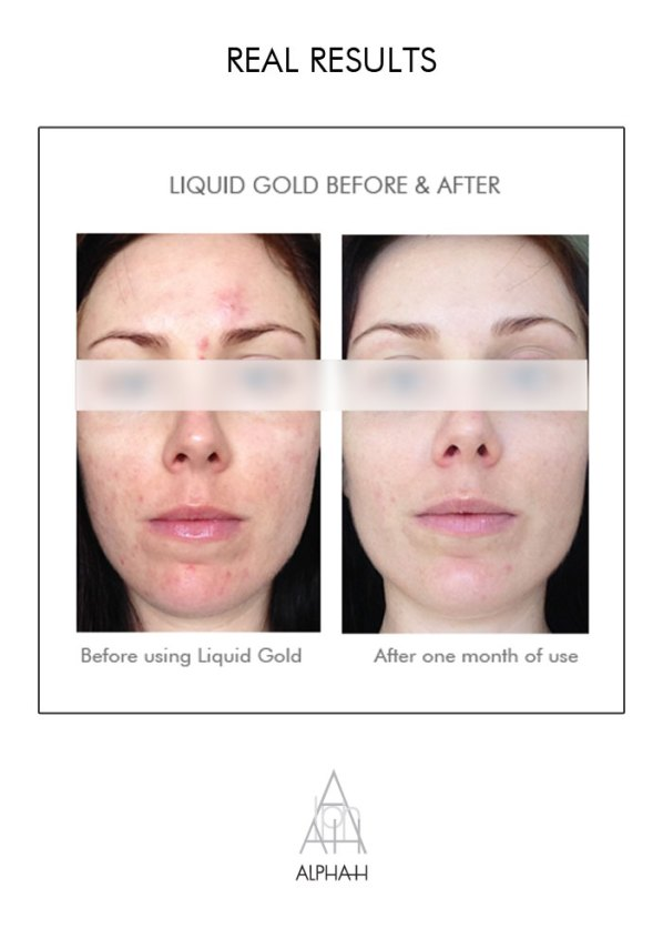 Alpha-H Liquid Gold Before and After