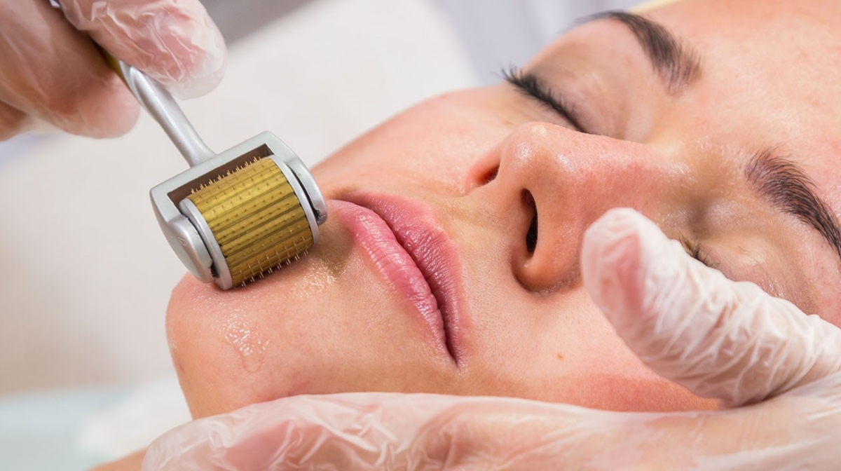 Will Your Skin Benefit From Using a Derma Roller?