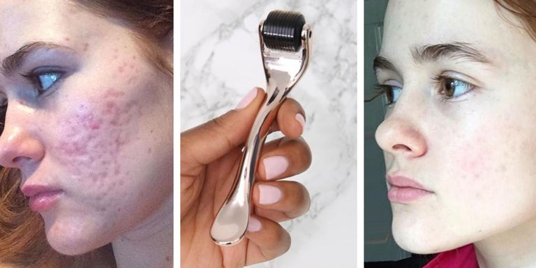Will Your Skin Benefit From Using a Derma Roller? - RY