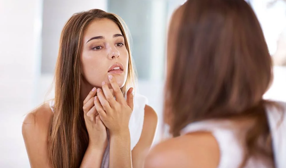 Skincare for Roaccutane Dos and Don'ts