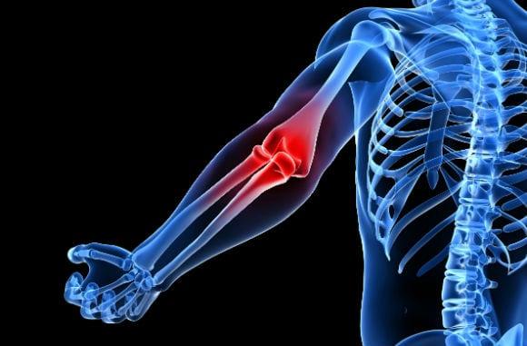 elbow-pain