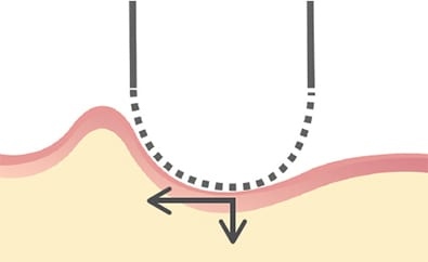 Illustration of electric shaver on skin