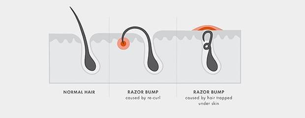 Razor Bump diagram