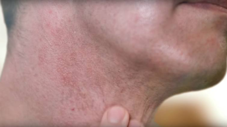 Irritated skin after shaving