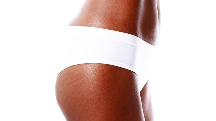 Top Tips To Minimise Stretch Marks